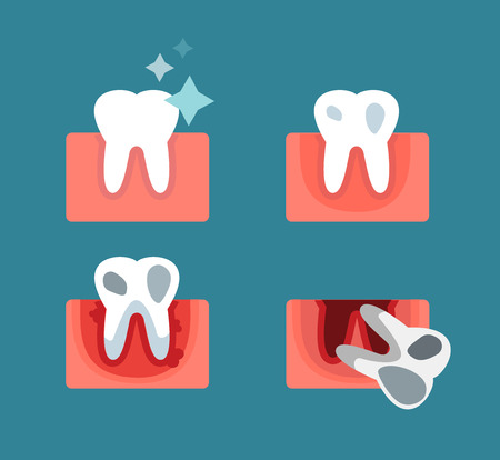 Periodontal disease stage steps vector illustration. Dental tooth problems vector concept. Toothache, tooth dead, bad tooth care. Doctors dentists professional illustration. Medical dental tooth disease, oral problems