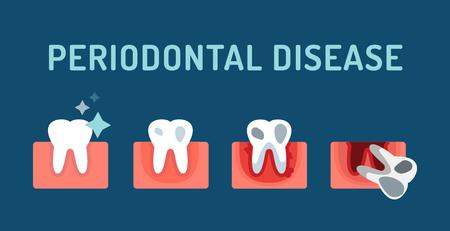 gencives: Stade de la maladie parodontale étapes illustration vectorielle. Dentaires problèmes dentaires vecteur concept. Maux de dents, dent morte, mauvais soins dentaires. Médecins Dentistes illustration professionnelle. La maladie de dent dentaire médical, problèmes bucco-dentaires
