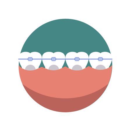 Bretels tandheelkundige smile mond en beauty gezondheid tanden bretels. Bretels tandheelkunde beugel en metalen orthodontische beugels. Tand stomatology toevallige orale bretels. Tanden tandheelkundige mond met zorg bretels vector.