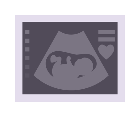 ultrasonic: Obstetric ultrasound baby of fetus ecography scan. Vector illustration ultrasound baby pregnant maternity photo. Ultrasonic scan photo expecting life ultrasound baby care, pregnancy sonar.