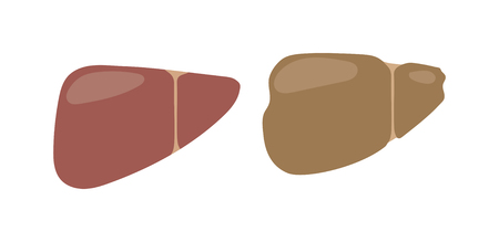 human liver: Realistic human liver vector medical illustration. Medicine anatomy human liver, organ human, health and biology. Liver patients with hepatitis repercussion alcoholism human liver.