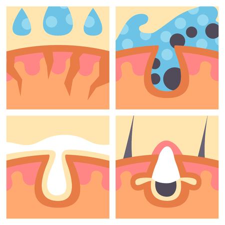 フェイシャルケア肌問題ベクトルクリーンヒト化粧品にきび皮膚科学不安定な顔スキニーケアティーンエイジャー欠陥要素図。
