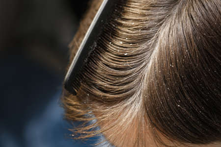 ot of dandruff on the head of a dark-haired guy, problem scalp. hair care. close-up of hair