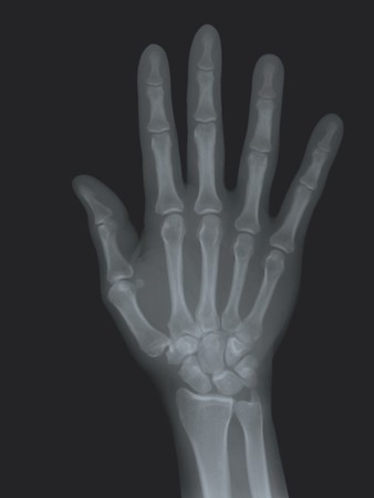 A radiography of the right hand. Mecial concept photo