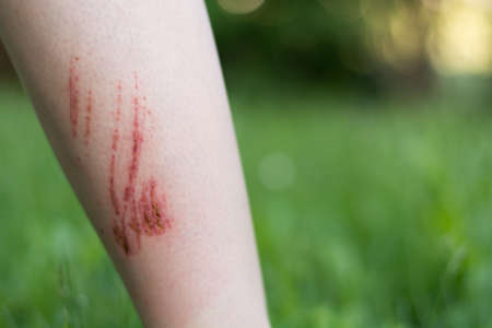 healing process: Person has infected injuries on the forearm Stock Photo