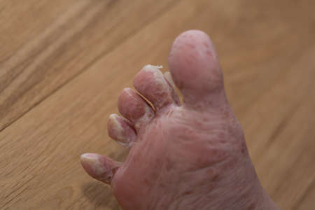 Skin dissolves after viral skin disease from the foot - clse-up Stock Photo