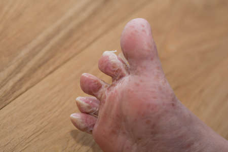 skin disease: Foot molts after viral skin disease - closeup