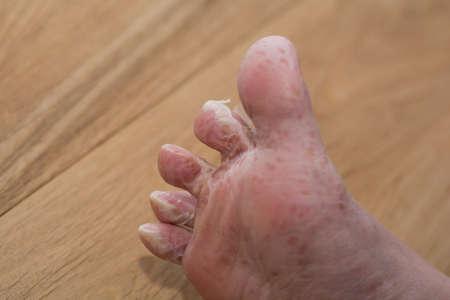 Fuß Häutungen nach der viralen Hauterkrankung - Nahaufnahme Standard-Bild - 52623710