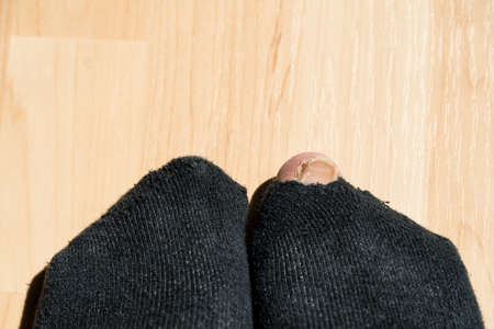 Toe looks through sock with hole - close-up Standard-Bild