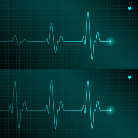 hjärtslag: ECG tracing