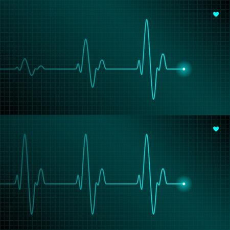 pulso: Seguimiento de ECG Vectores