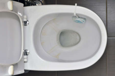 Toilet in the house with yellow stains from the water, cleaning unit with detergent on the rim. hygiene