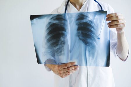 The doctor is holding an X-ray of his lungs. X-rays of a man's lungs. International doctor's day. Doctor on the front line.