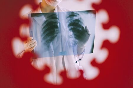 A radiologist in a medical mask and gloves radiates an x-ray image of the patients lungs. The doctor is holding an X-ray of his lungs. A hole in a piece of red paper in the shape of a coronavirus.