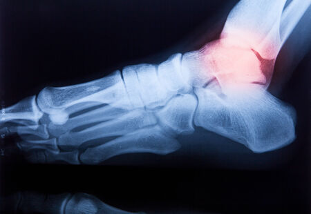 Ankle feet & knee joint X-ray human photo film Stock Photo