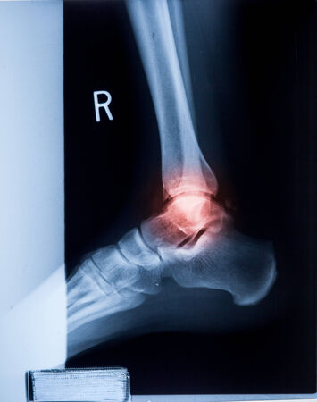 isolation: Ankle feet & knee joint X-ray human photo film Stock Photo