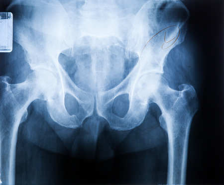 broken back: X ray MRI - Image of Spine pain and Hip bone