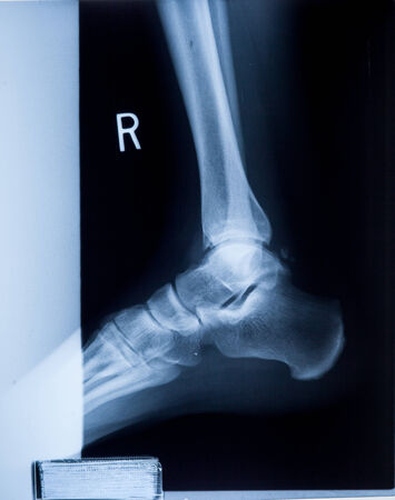 x rays negative: Ankle feet & knee joint X-ray human photo film Stock Photo