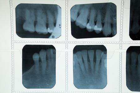 Dental X ray human film for dentist photo