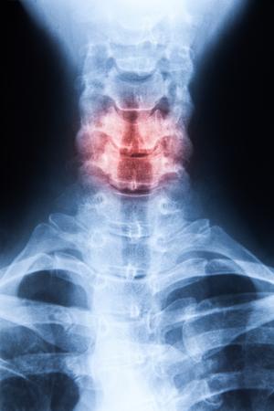 degeneration: X ray MRI - Image of Spinal Column Neck pain and Skull Head Stress Stock Photo
