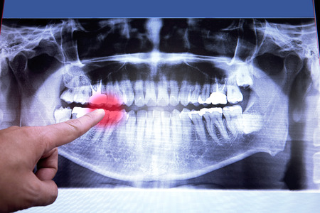 mouth pain: Panoramic dental X-Ray film for dentist