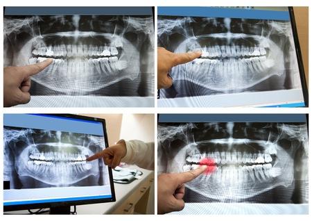 Panoramic dental X-Ray film for dentist photo