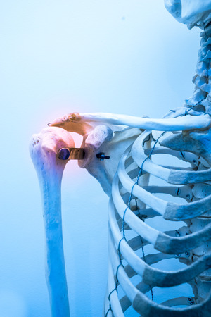 ilium: shoulder bone pain & inflammation