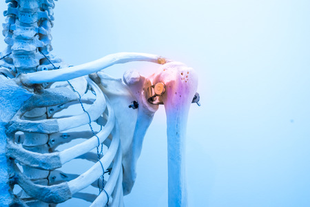 inflammation: shoulder bone pain & inflammation