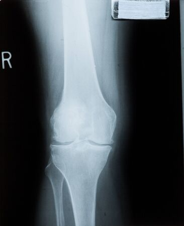 ankle: Ankle feet & knee joint X-ray human photo film Stock Photo