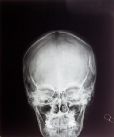maxilla: X ray MRI - Image of Spinal Column Neck pain and Skull Head Stress Stock Photo