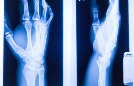 photo film: Ankle feet & knee joint X-ray human photo film Stock Photo