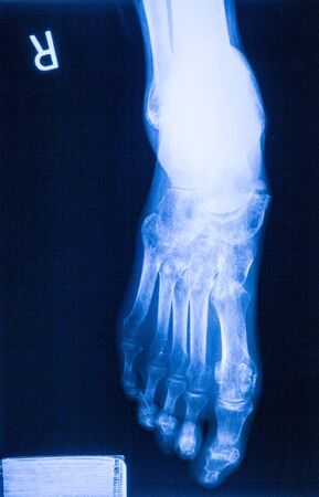 meniscus: Ankle feet & knee joint X-ray human photo film Stock Photo