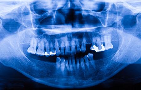 maxilla: Human X-ray film in the hospital