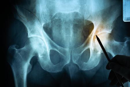 Película de rayos X con la mano del médico.