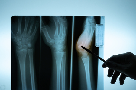 X-ray film with doctors hand Stock Photo
