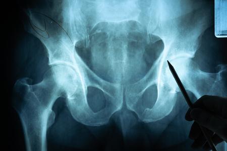 Röntgenfilm mit Arzthand zur Untersuchung
