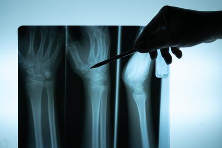 Film radiographique avec la main du médecin pour examiner
