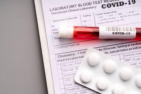 Blood test sample for COVID 19 virus Stock Photo