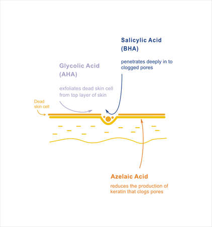 Skin care exfoliating. Infographics beauty treatment. Acid exposure on skin.