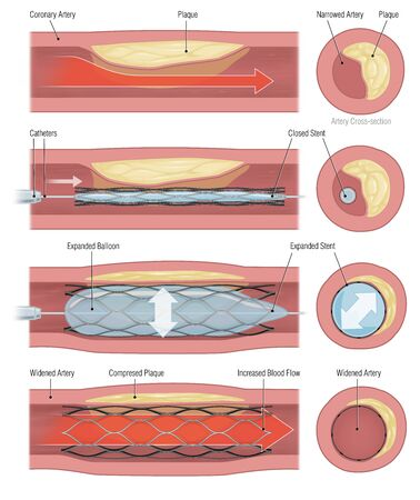 medical illustration of balloon stent placement procedure into vein 写真素材