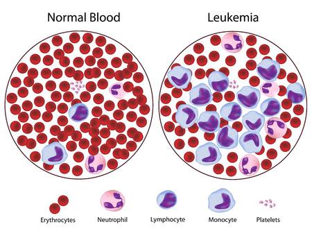 leucemia: Leucemia frente normal de la sangre, eps8 Vectores
