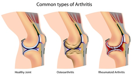 knee joint: Common types of arthritis, eps8 Illustration