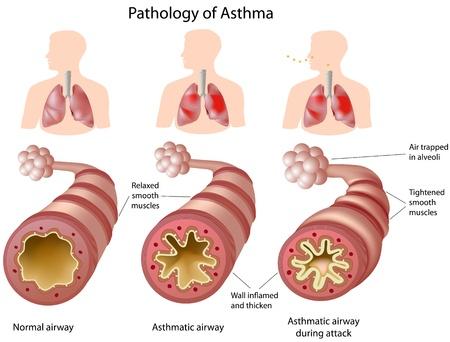 asthme: Anatomie de l'asthme, eps8