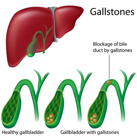 Gallstones, eps8 Stock Vector - 9245821