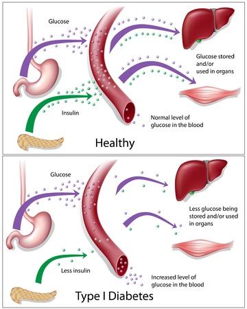 tipos: Diabetes de tipo 1, eps8 Vectores