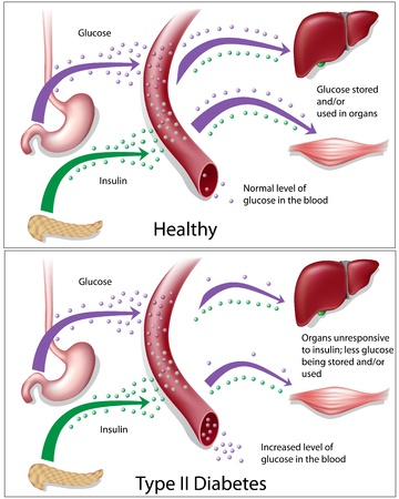 diabetico: Diabetes de tipo 2, eps8 Vectores
