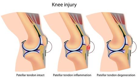 maltrato infantil: Anatom�a de rodilla del puente, eps8