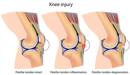 patella: Jumpers knee anatomy, eps8 Illustration