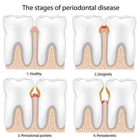 Pedontal Disease , eps8 Stock Vector - 9329876