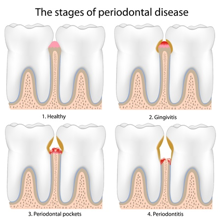 Periodontal Disease , eps8 Vector